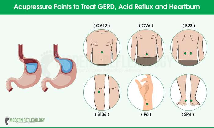 Acupressure Points to Relieve Acid Reflux and Heartburn ...