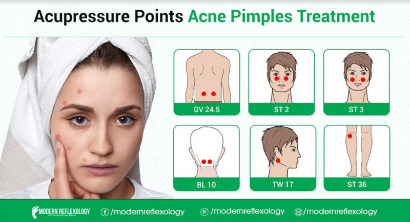 Acupressure Points for Treating Acne at Home - Modern ...