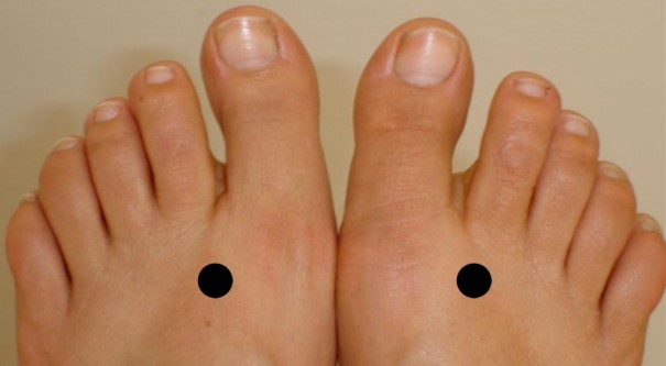 Feet Pressure Points to Control Diabetes