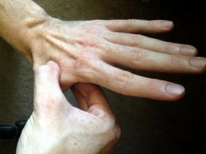 hand points for headache