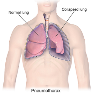 Acupressure Points to Treat Lung Diseases