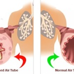 Lung Disease Caused by Affected Airways