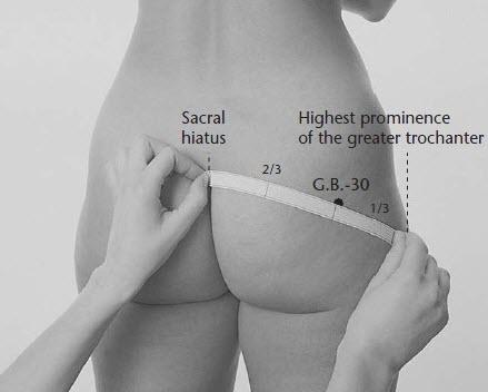 Ponto de acupuntura GB30