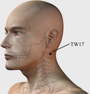 TW 17