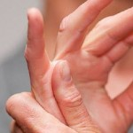 Rheumatoid Arthritis and its Severity