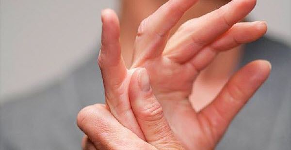 Rheumatoid Arthritis and its Severity