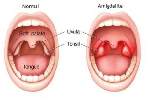 Tonsillitis, a Recurring Problem