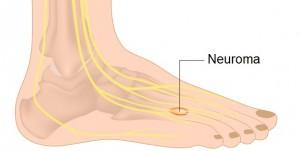 Peripheral Neuropathy Symptoms