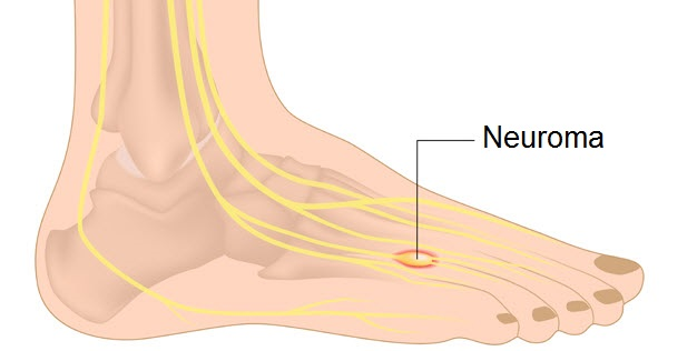 peripheral neuropathy treatment via reflexology for hands and feet, Skeleton