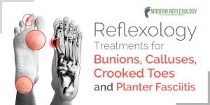 Reflexology Treatments for Bunions, Calluses, Crooked Toes and Planter Fasciitis