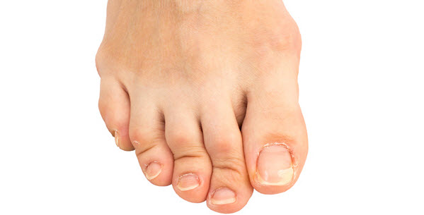 Reflexology Treatments For Bunions Calluses Crooked Toes