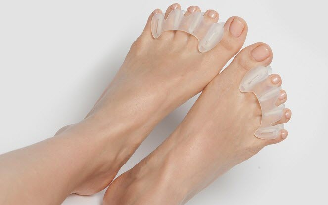 treatment-crooked-toes