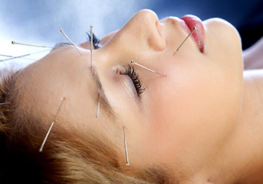 How Acupuncture Helps in Treating Diseases of the