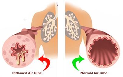 pulmonary-disease