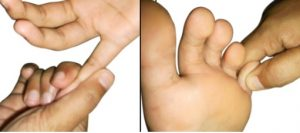 acupressure-points-to-combat-piles-pain