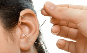 acupuncture-is-an-effective-treatment-for-smoking