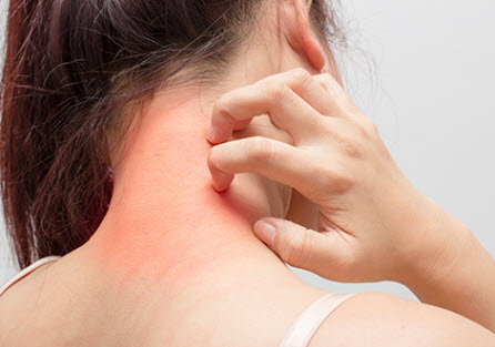 acupuncture-treats-dermatitis and Eczema