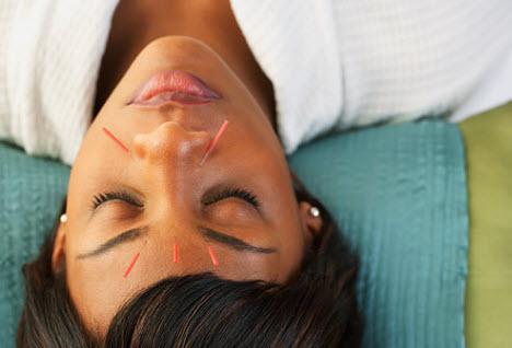 acupuncture-treats-psoriasis