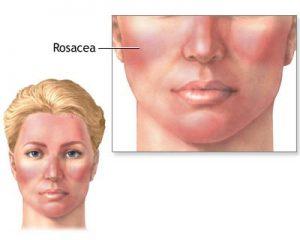 acupuncture-treats-rosacea-1