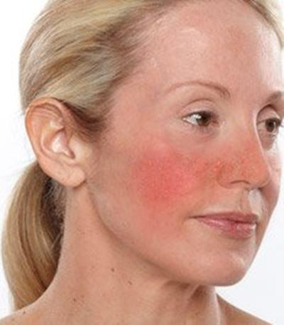 acupuncture-treats-rosacea