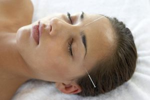 does-acupuncture-help-to-quit-smoking