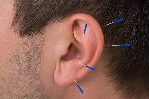 ear-points