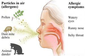symptoms-of-allergies