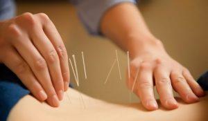 acupuncture-procedure