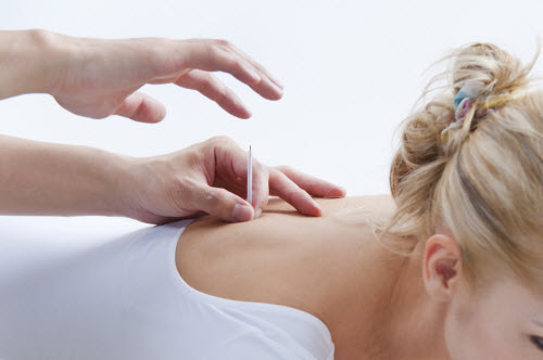 acupuncture-work