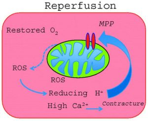 reperfusion-damage