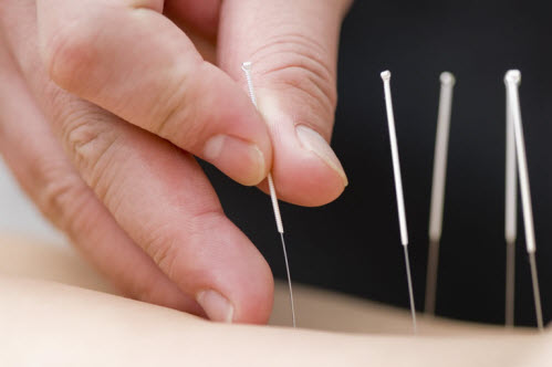 tcm-acupuncture