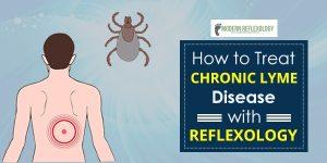 banner-chronic-lyme-disease