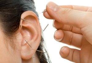 acupuncture-earmark