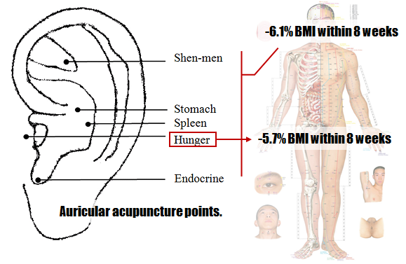 acupuncture-treatments