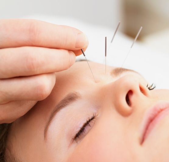 acupuncture-for-dementia