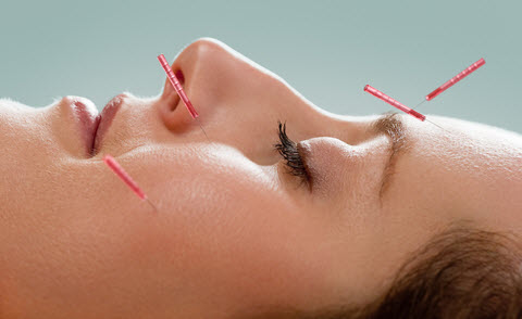 acupuncture-for-insomnia
