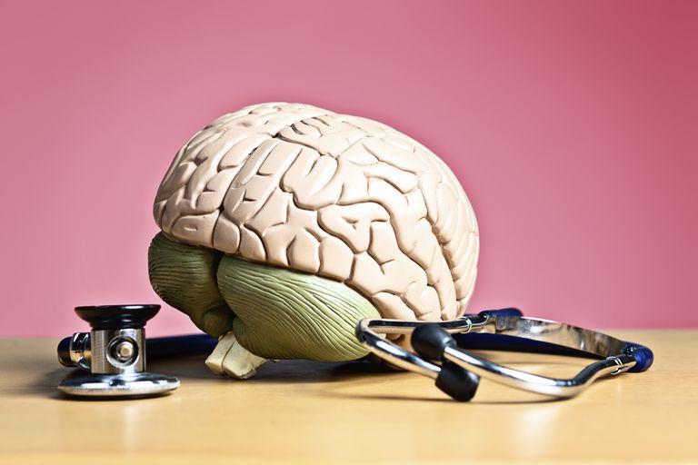 vascular-dementia-stages