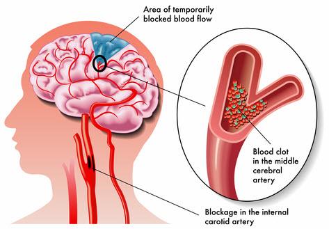 vascular-dementia-symptoms