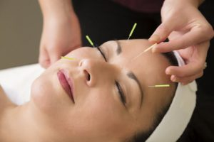 acupuncture-to-avoid-the-onset