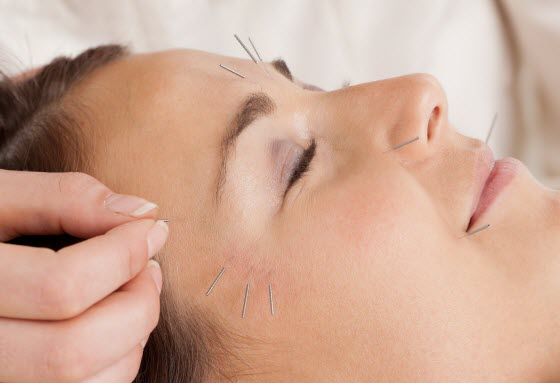 acupuncture-for-chronic-fatigue