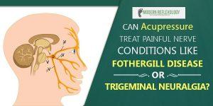 trigrminal-neuralgia