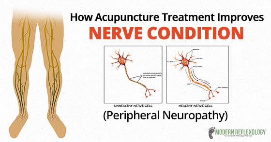 Nerve condition - acupunture treatment