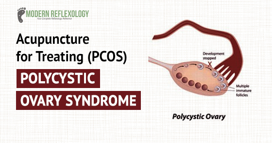 Acupunctue treatment for Polycystic Ovary Syndrome