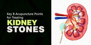 Kidney-Stone-Acupuncture