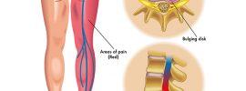 sciatica nerve pain syptoms