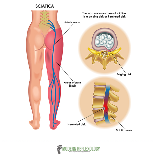 sciatica nerve pain syptoms