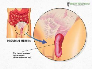 Inguinal-Hernia