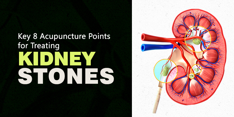 Acupuncture points for treating Kidney Stone