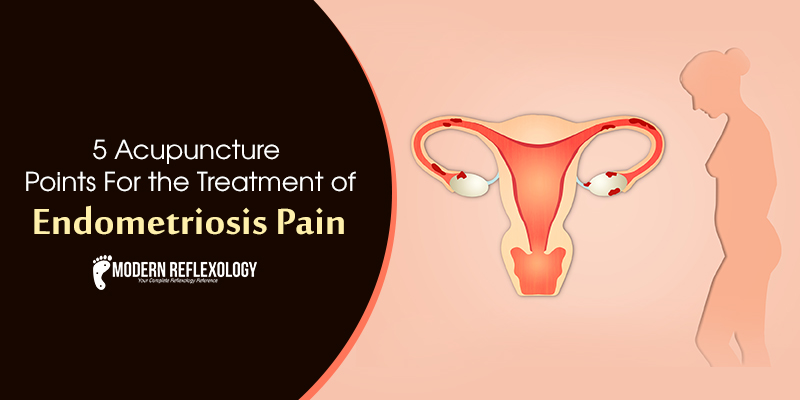 Acupuncture Points for the Treatment of Endometriosis Pain