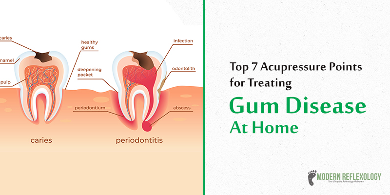 7 Most Effective Acupressure Points For Treating Gum Disease